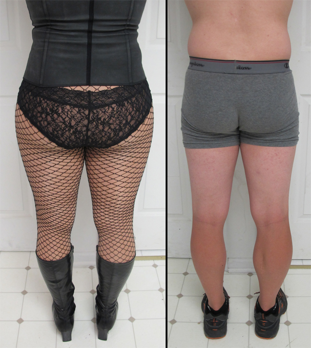 2 rear images: boy in underwear and with hip pads with underwear and corset